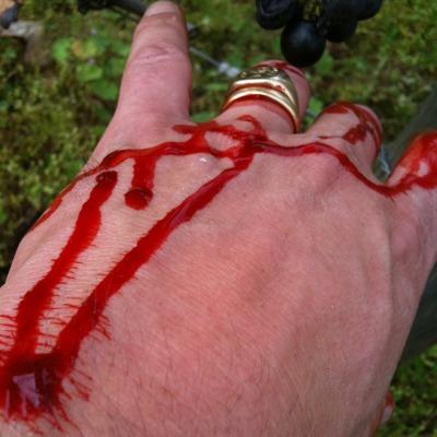 Oops I cut myself